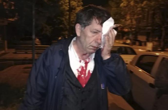 Yeniçağ yazarı Yavuz Selim Demirağ saldırıya uğradı