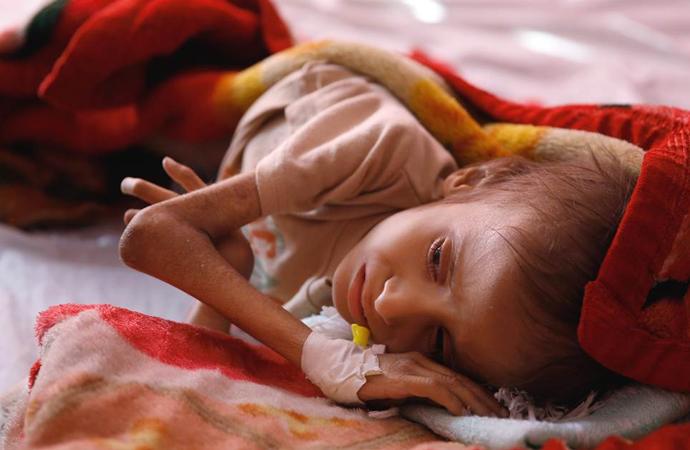 Yemen'de sürdürülebilir ateşkes mümkün mü?
