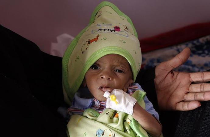 Yemen'in güneyinde 98 bin çocuk ölüm riskiyle karşı karşıya