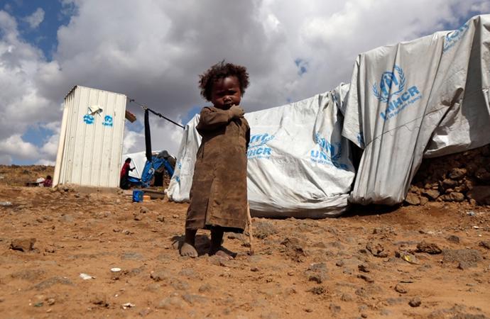 'Yemenliler aç kalmıyor, açlıktan ölüyor!'